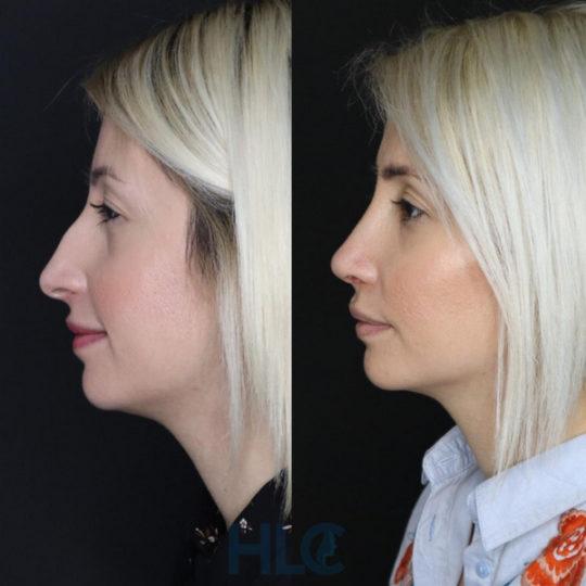 Порівняльні фото до і після ринопластики дівчині, через 2 тижні - Вид збоку, ліворуч