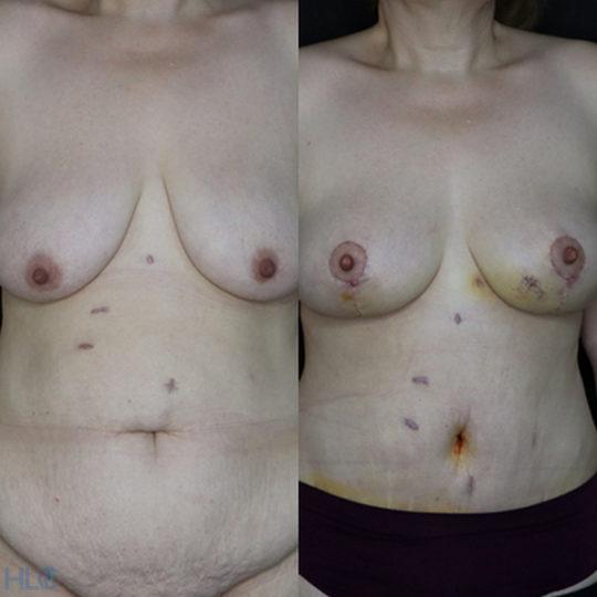 Сравнение до и после операции подтяжки груди и пластики живота - Вид спереди