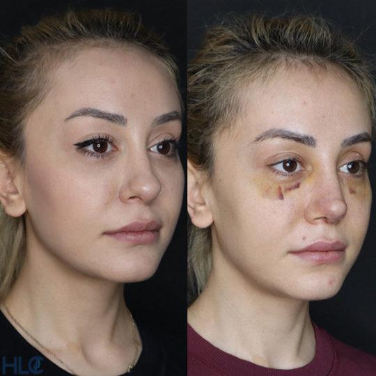 До и после повторной ринопластики, сравнительное фото - Вид под углом