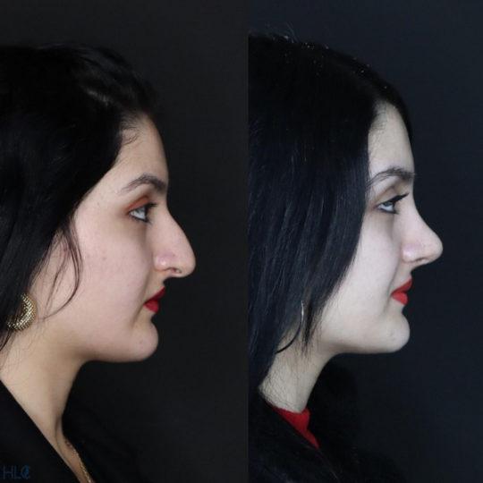 До і після ринопластики, порівняльне фото - Вид збоку