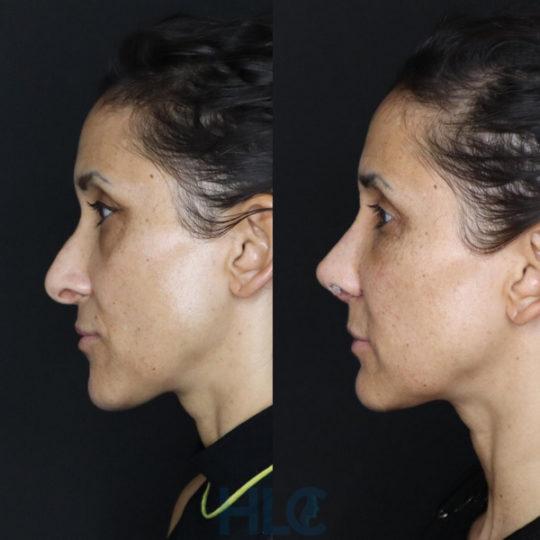 До і після зменшення перенісся жінці і підняття кінчика носа, через 2 тижні - вид збоку, ліворуч