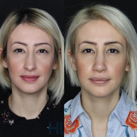 Порівняльні фото до і після ринопластики дівчині, через 2 тижні - Вид спереду