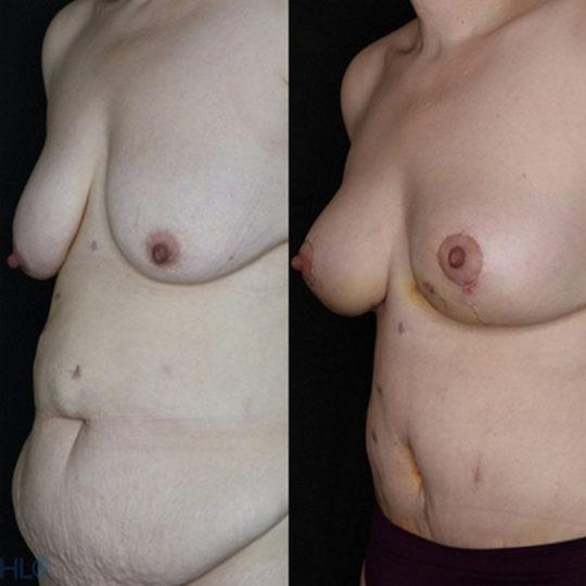 Сравнение до и после операции подтяжки груди и пластики живота - Вид под углом