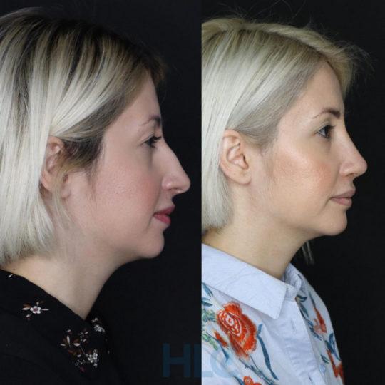 Порівняльні фото до і після ринопластики дівчині, через 2 тижні - Вид збоку, праворуч