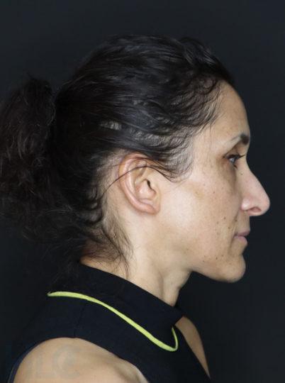 До зменшення перенісся і підняття кінчика носа жінці - вид збоку