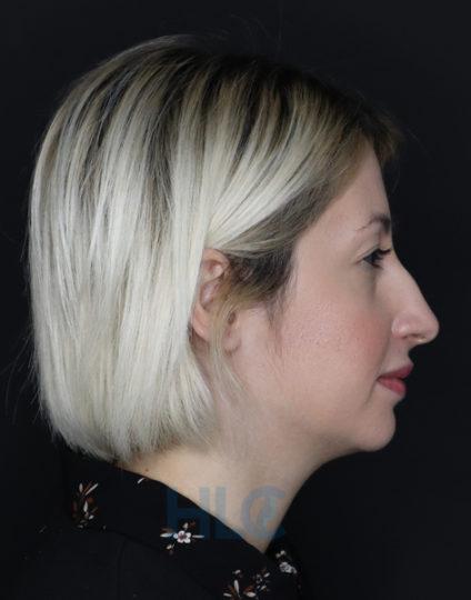 Фото до корекції перенісся і кінчика носа дівчині - Вид збоку