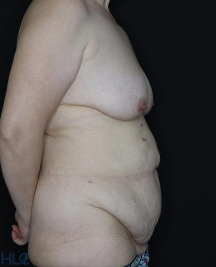 До операции подтяжки груди и пластики живота - Вид сбоку, справа