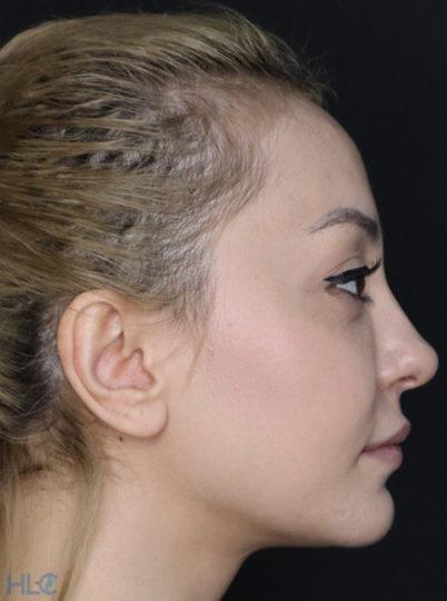 До корекції кінчика носа дівчині, повторна ринопластика - Вид збоку