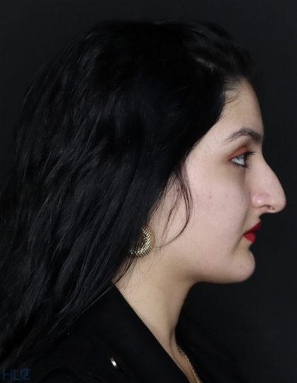 До процедури ринопластики дівчині, корекція носа відкритим методом - Вид збоку, праворуч