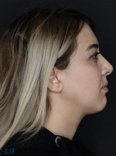 До процедуры увеличения губ и коррекции подбородка девушке - Вид сбоку, справа
