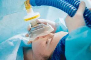 пациент под анестезией во время операции