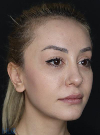 До корекції кінчика носа дівчині, повторна ринопластика - Вид під кутом