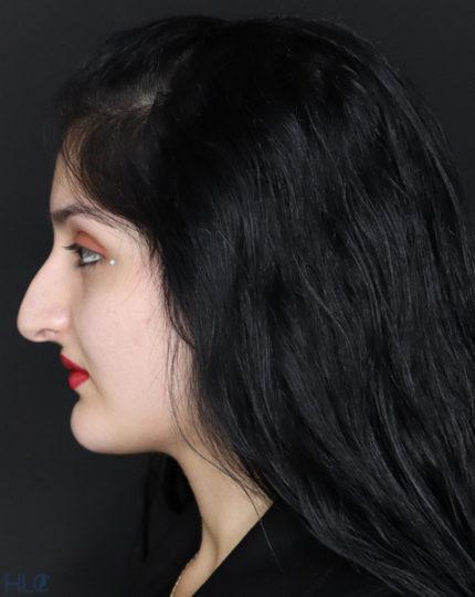 До процедури ринопластики дівчині, корекція носа відкритим методом - Вид збоку, ліворуч