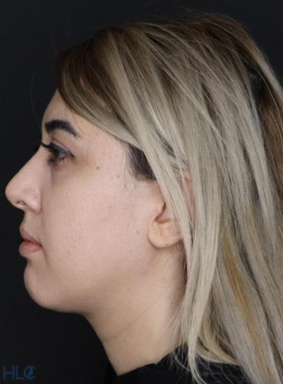 До процедури збільшення губ і корекції підборіддя дівчині - Вид збоку, ліворуч