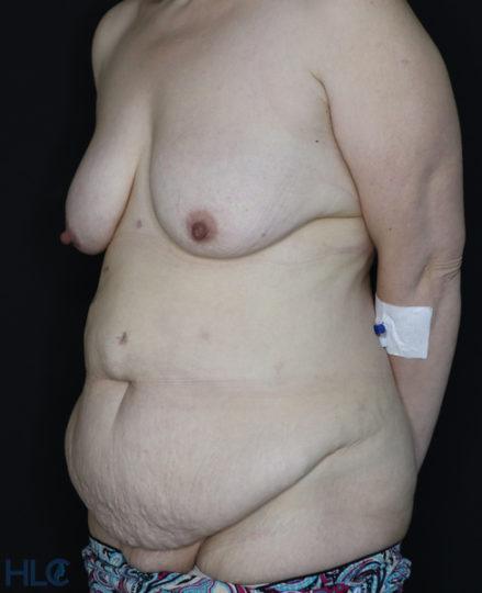 До операции подтяжки груди и пластики живота - Вид под углом, слева