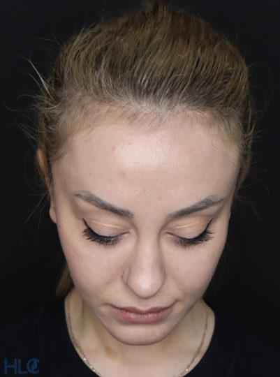 До коррекции кончика носа девушке, повторная ринопластика - Вид сверху