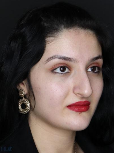 До процедури ринопластики дівчині, корекція носа відкритим методом - Вид під кутом, праворуч