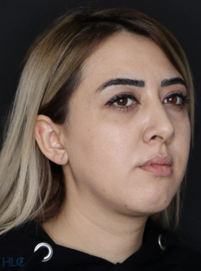 До процедури збільшення губ і корекції підборіддя дівчині - Вид під кутом, праворуч