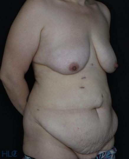 До операції підтяжки грудей і пластики живота - Вид під кутом, праворуч