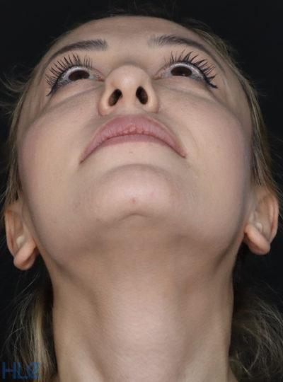 До корекції кінчика носа дівчині, повторна ринопластика - Вид знизу