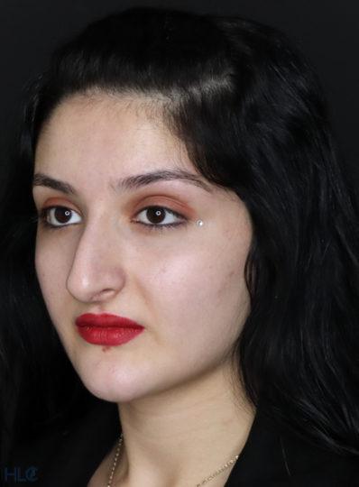 До процедури ринопластики дівчині, корекція носа відкритим методом - Вид під кутом, ліворуч