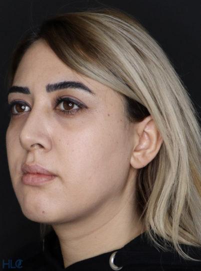 До процедуры увеличения губ и коррекции подбородка девушке - Вид под углом, слева