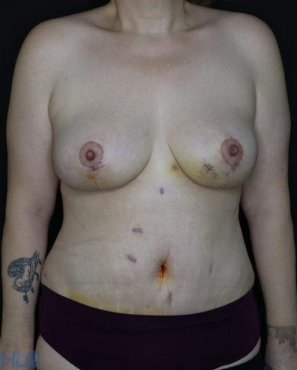 После операции подтяжки груди и пластики живота - Вид спереди