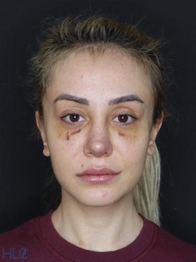 После коррекции кончика носа девушке, повторная ринопластика - Вид спереди