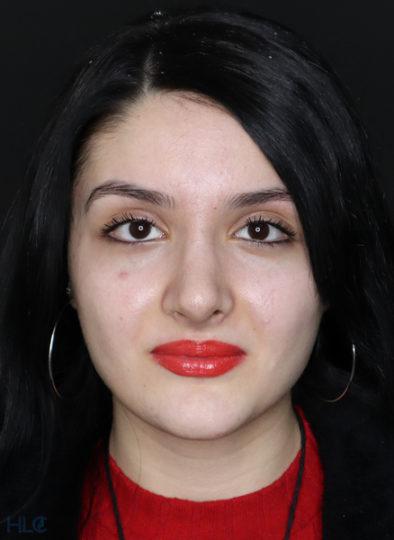 Після ринопластики дівчині, корекція носа відкритим методом - Вид спереду