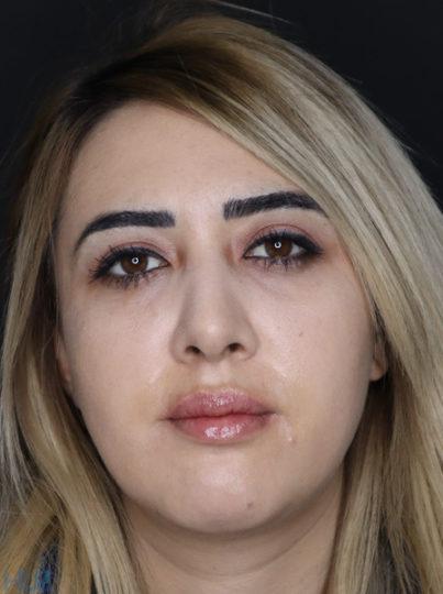 После процедуры увеличения губ и коррекции подбородка девушке - Вид спереди