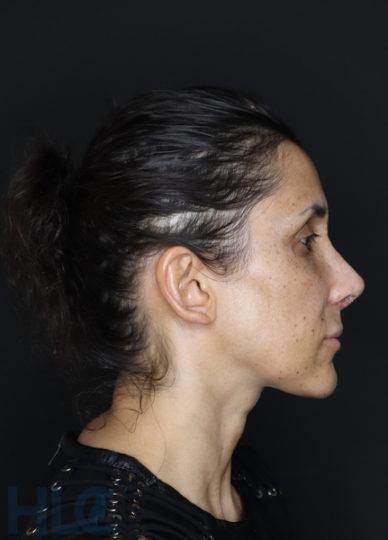 Через 2 тижні після зменшення перенісся і підняття кінчика носа жінці - Вид збоку, праворуч
