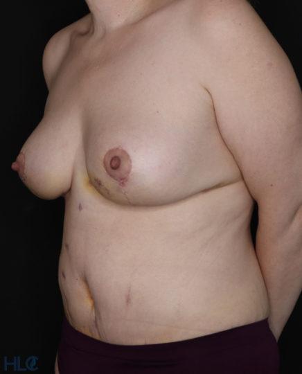 После операции подтяжки груди и пластики живота - Вид под углом, слева