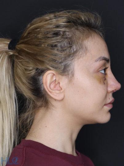 После коррекции кончика носа девушке, повторная ринопластика - Вид сбоку
