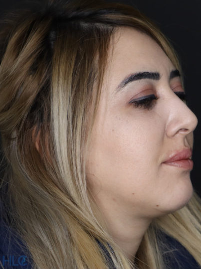Після процедури збільшення губ і корекції підборіддя дівчині - Вид під кутом