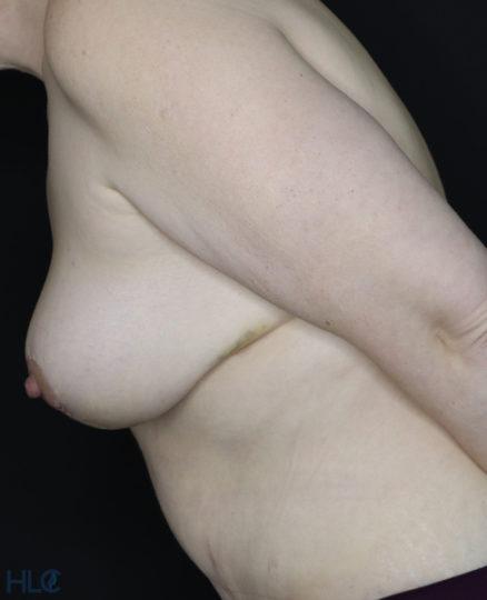 После операции подтяжки груди и пластики живота - Вид сбоку, слева