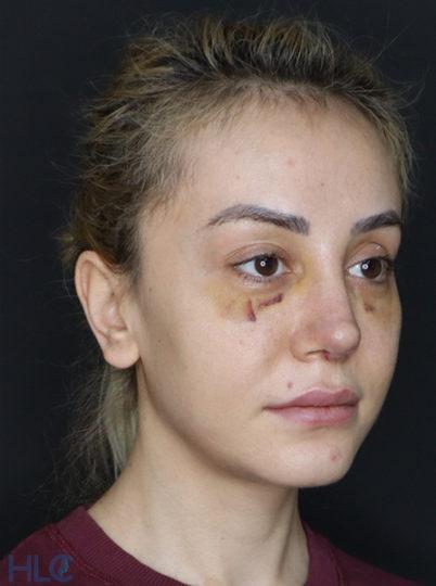 После коррекции кончика носа девушке, повторная ринопластика - Вид под углом, справа