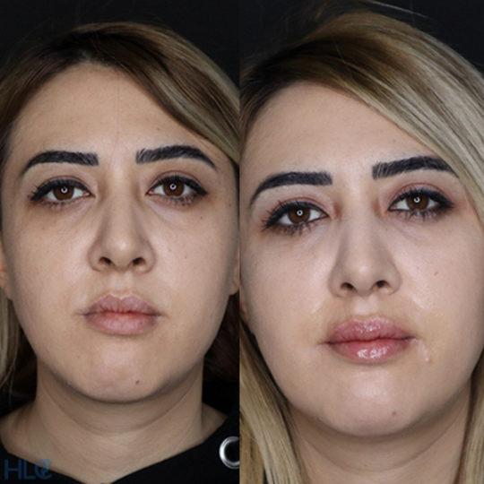До і після збільшення губ і корекції підборіддя дівчині - Вид спереду