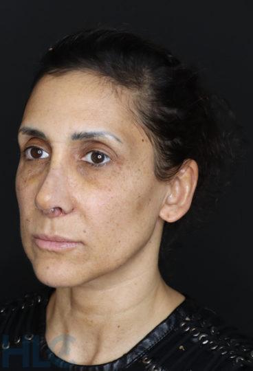 Через 2 тижні після зменшення перенісся і підняття кінчика носа жінці - Вид під кутом, ліворуч