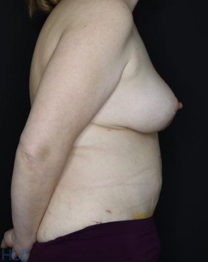 Після операції підтяжки грудей і пластики живота - Вид збоку, праворуч