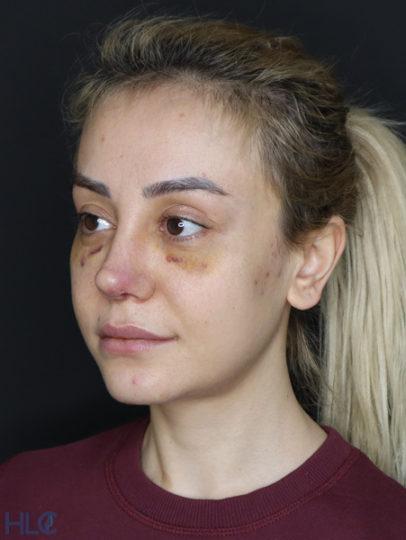 После коррекции кончика носа девушке, повторная ринопластика - Вид под углом, слева