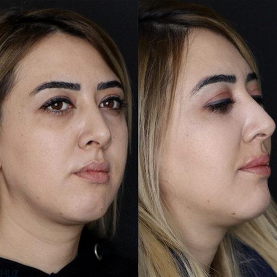 До и после увеличения губ и коррекции подбородка девушке - Вид под углом
