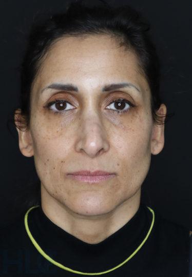 До уменьшения переносицы и поднятия кончика носа женщине - вид спереди