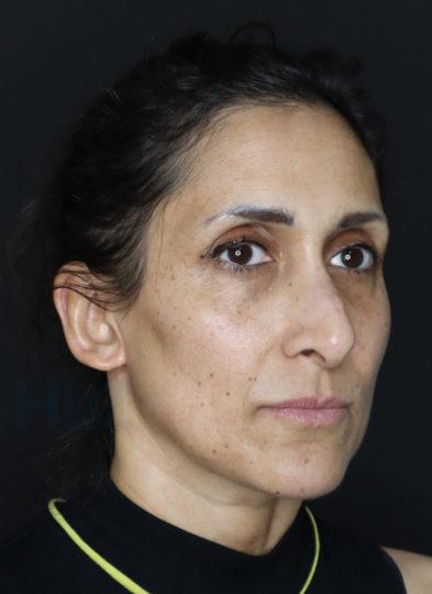До уменьшения переносицы и поднятия кончика носа женщине - вид справа под углом