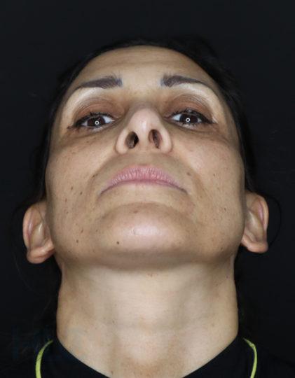 До уменьшения переносицы и поднятия кончика носа женщине - вид снизу