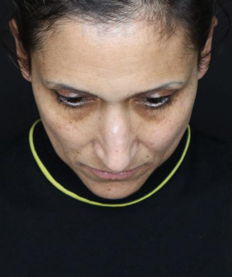 До уменьшения переносицы и поднятия кончика носа женщине - вид сверху