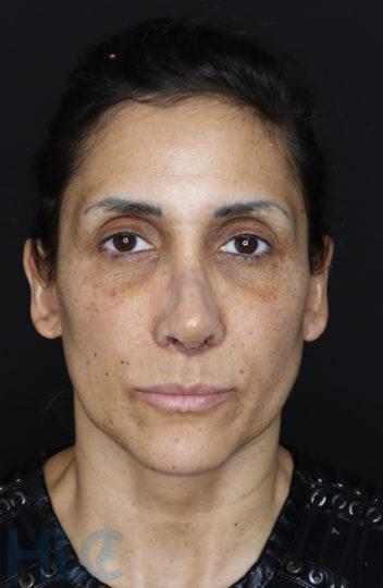 Через 2 недели после уменьшения переносицы и поднятия кончика носа женщине - Вид спереди