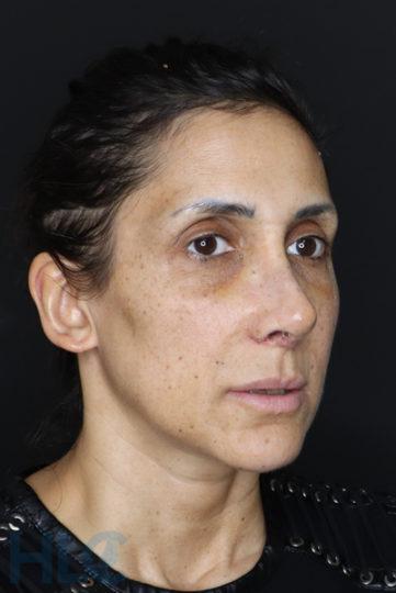 Через 2 недели после уменьшения переносицы и поднятия кончика носа женщине - Вид справа под углом