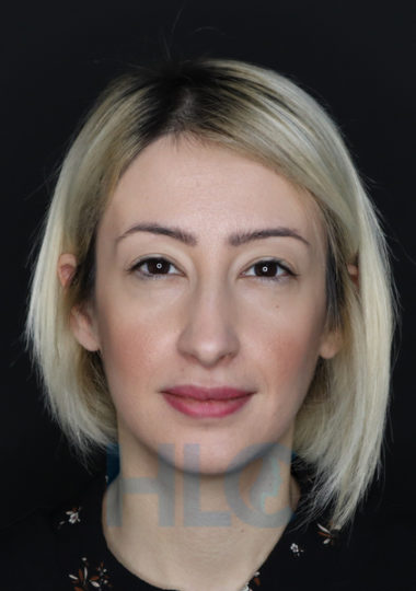 Фото до коррекции переносицы и кончика носа девушке - Вид спереди