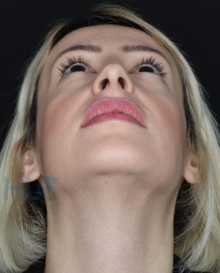 Фото до коррекции переносицы и кончика носа девушке - Вид снизу