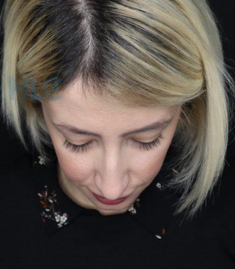 Фото до коррекции переносицы и кончика носа девушке - Вид сверху